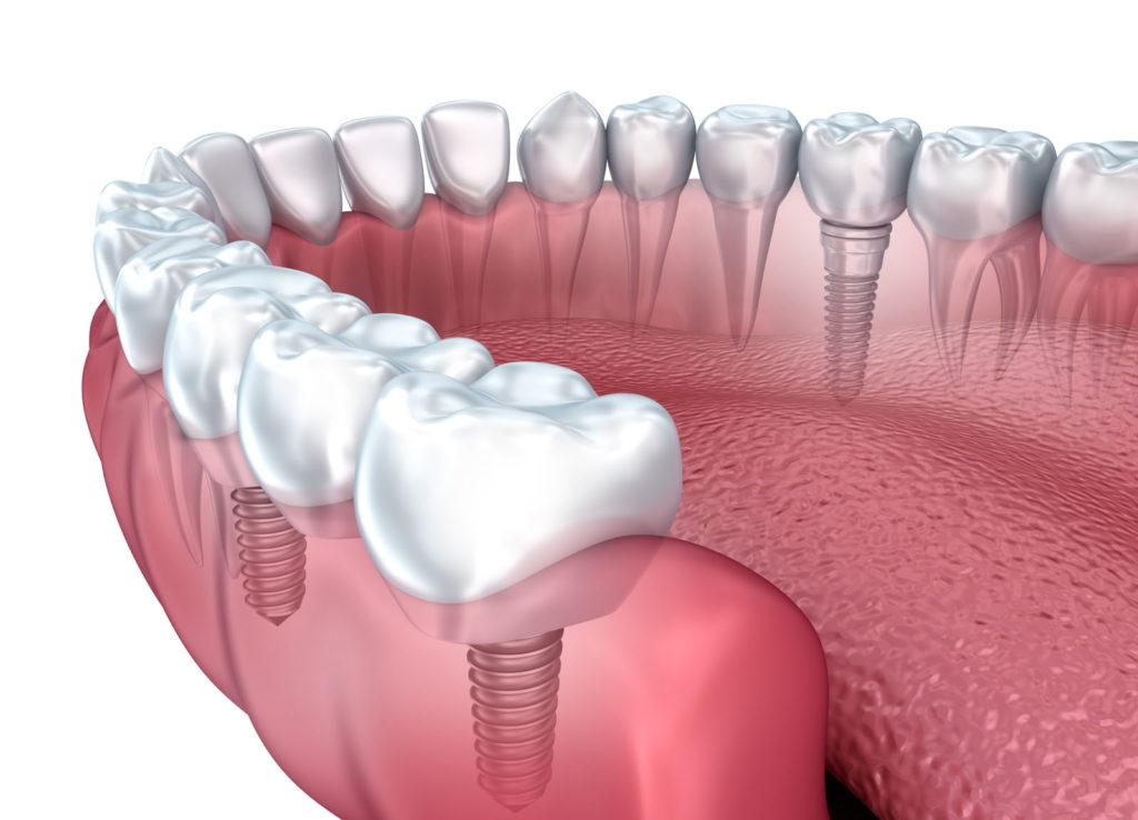 Implanty zębów – powiew przyszłości w gabinecie dentystycznym